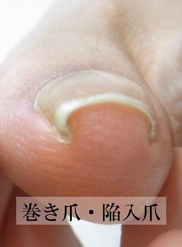 平塚市 巻き爪 陥入爪