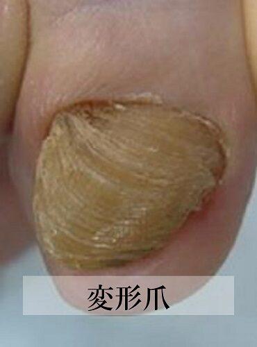 平塚市 巻き爪 変形爪