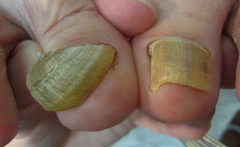 神奈川県 巻き爪 変形爪