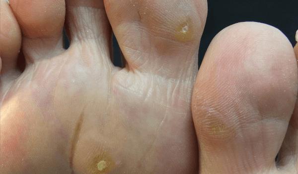神奈川 巻き爪 タコ ウオノメ