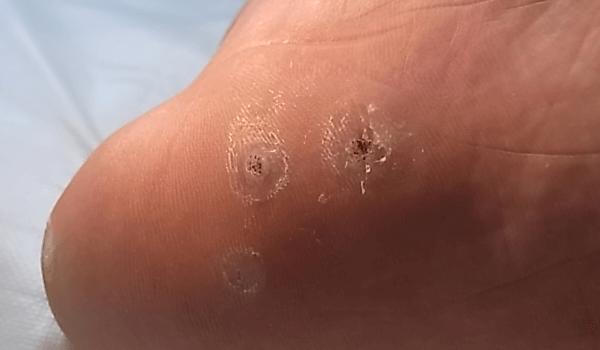 神奈川 巻き爪 タコ ウオノメ イボ