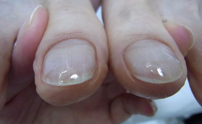 巻き爪 神奈川県 ピカピカの爪