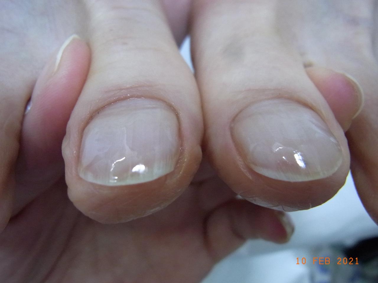 巻き爪 神奈川 ピカピカの爪