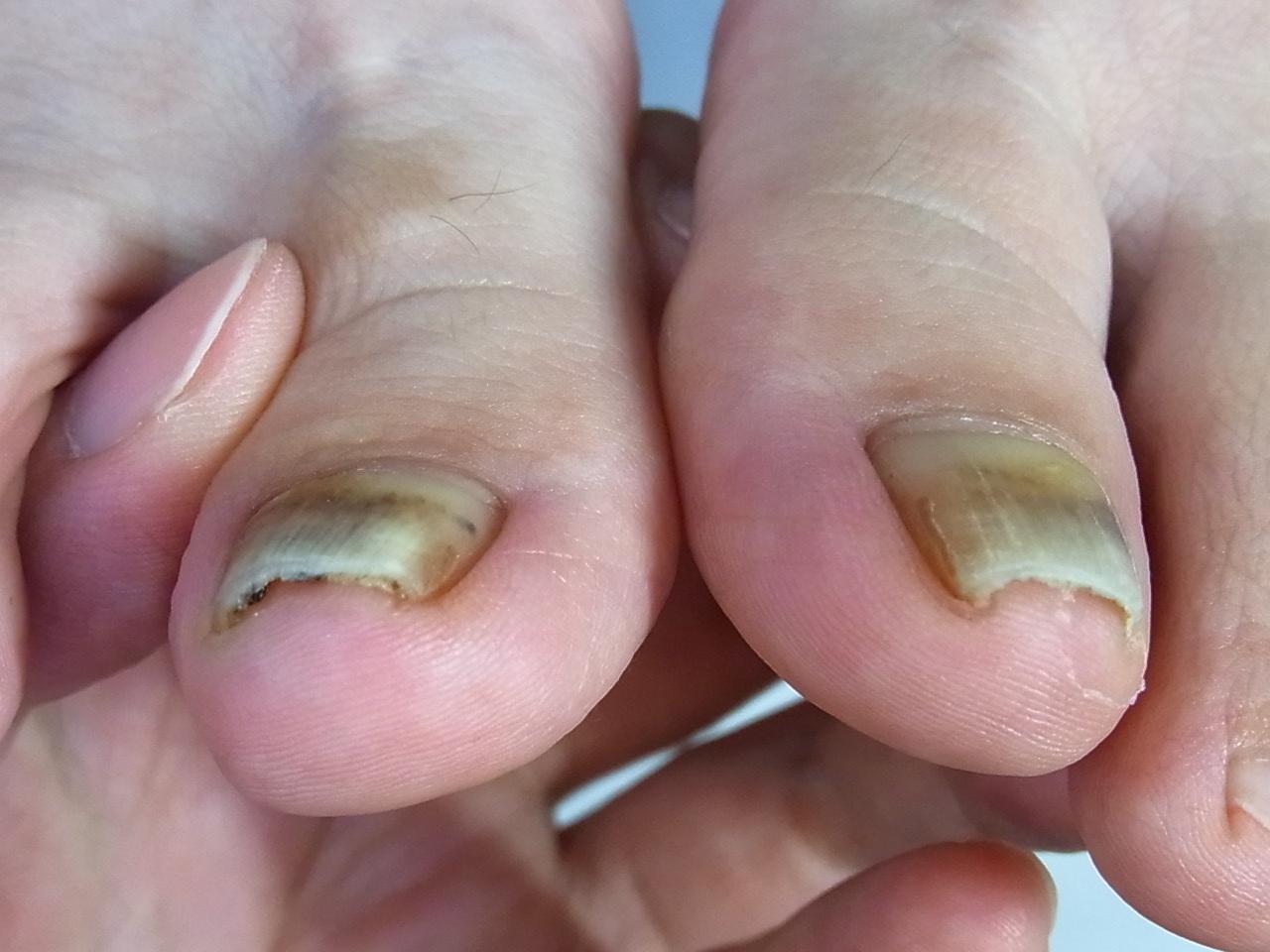神奈川 巻き爪 変形爪