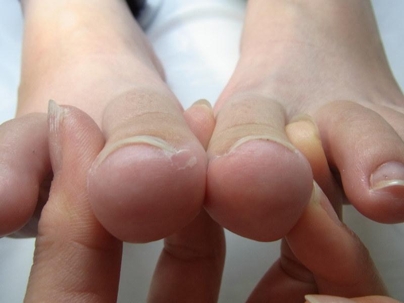 神奈川 巻き爪 両足