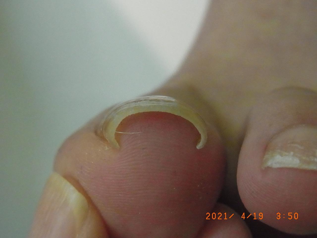 神奈川 巻き爪